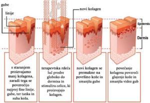 Proizvajanje novega kolagena in elastina