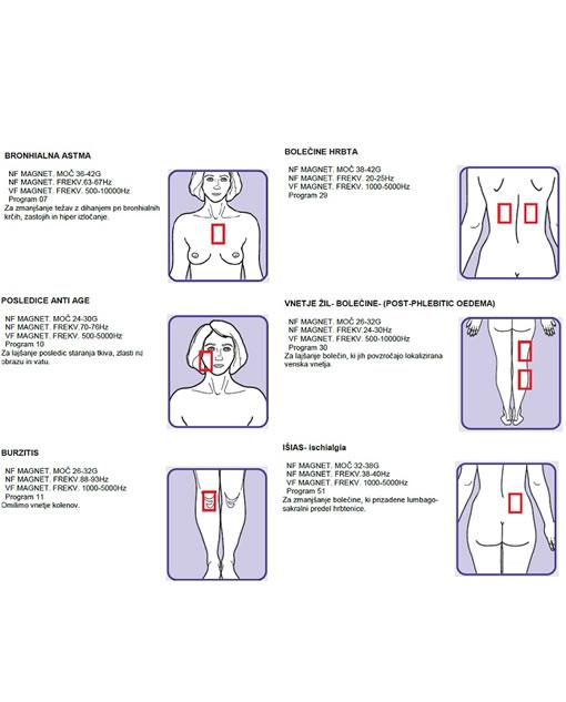 enostavna navodila uporabe za magnetno terapijo